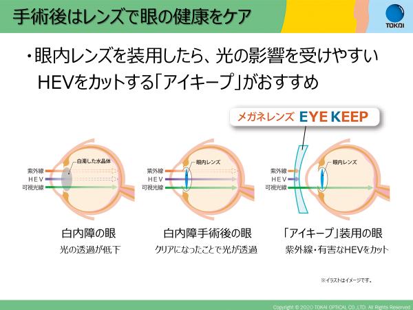 eyekeep06